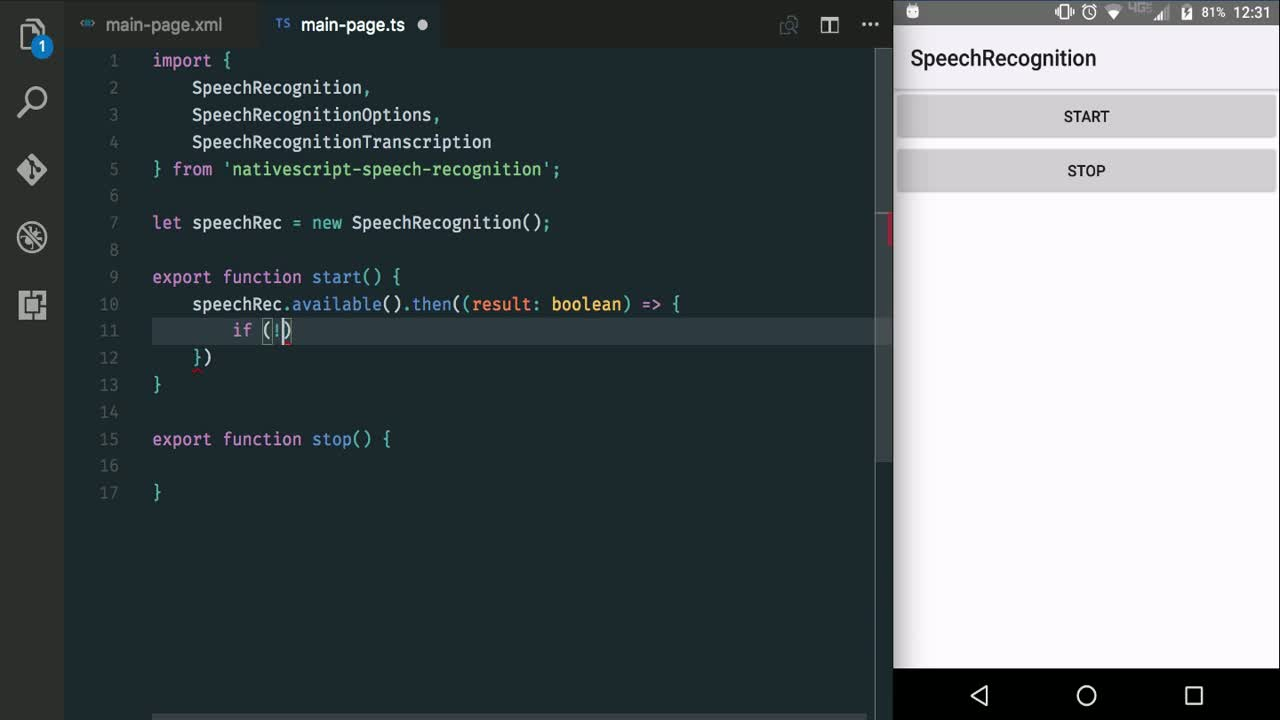 nativescript tutorial about Use Speech Recognition with NativeScript